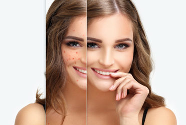 ABC pielęgnacji skóry trądzikowej.