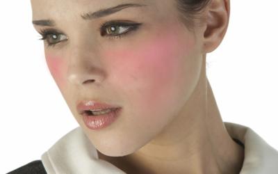 ABC pielęgnacji skóry z trądzikiem różowatym.